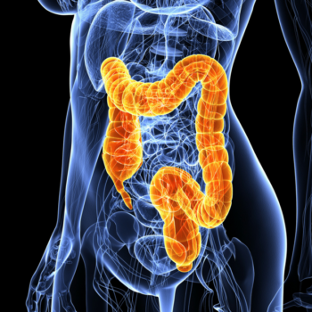 Colorectal Cancer Causes, Symptoms & Treatment